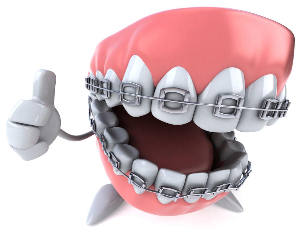 braces-5