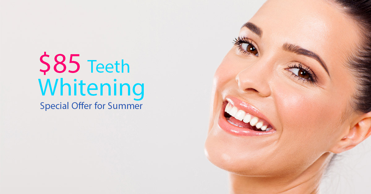 teeth-whitening-85-special