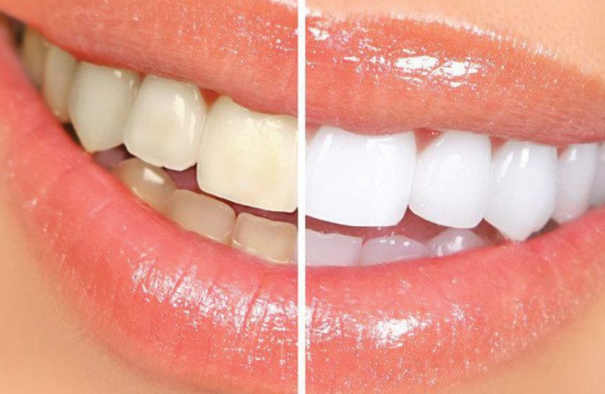 In Home vs Dental Office Teeth Whitening in Houston